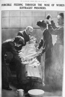 Force feeding suffragette, 1912. (Image: The Illustrated London News)
