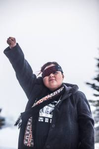 Water protector Vanessa Dundon lost the sight in her right eye after being struck by a tear gas canister. Photo: Adam Alexander