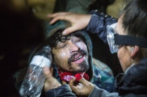 Water protector being treated by a medic after being tear gassed. Photo: Adam Alexander